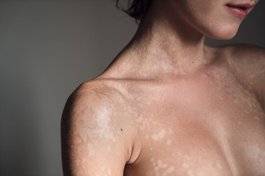 Skin with tinea versicolor