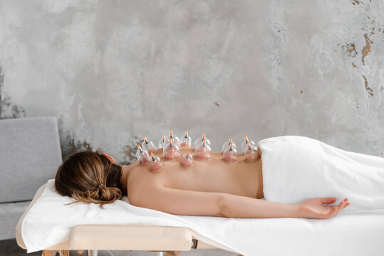 Side view of woman lying with many vacuum cups on back.