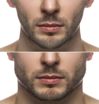 Result of a jawline reshape