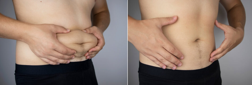 The man shows the results of work on the body. Before and after a thick and thin waist. In the photo on the left, belly fat is visible. In the photo on the right, a thin waist without extra kilograms