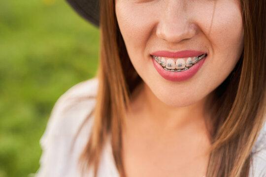Smile not ashamed of braces, smile of a girl close-up, self-ligating braces