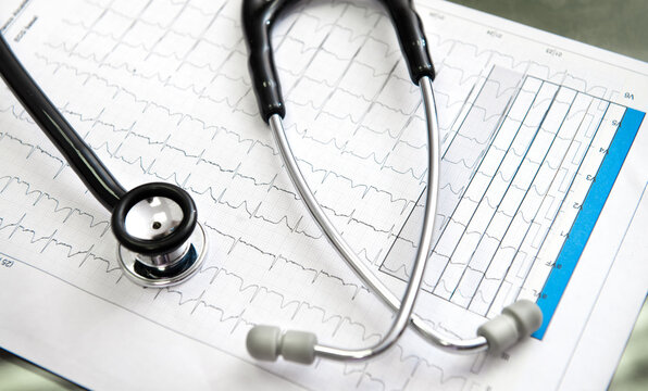 From above of medical stethoscope with stainless steel and plastic parts on paper sheet representing cardiogram with wavy lines in doctor office in hospital
