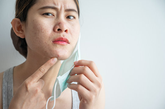 Asian woman worry about acne occur on her face after wearing mask for long time during covid-19 pandemic.