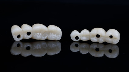 temporary dental bridges of chewing teeth on black glass with reflection