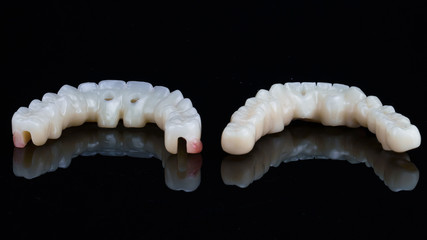 in the photo there are two temporary dental prostheses for fixation to the patient after surgery, view of the dentures from the inside