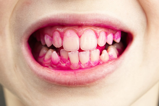 Plaque disclosing tablets in work. after using - effect. close up photo of young boy tooth. Dental plaque pill concept.