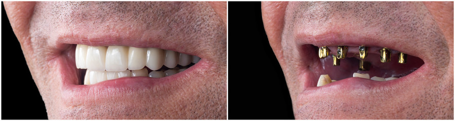 before and after pictures of dental implants and press cerami crowns