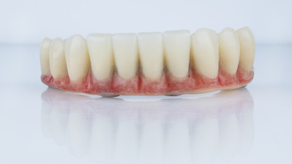 Dental prosthesis of the lower jaw with artificial gum on a white background