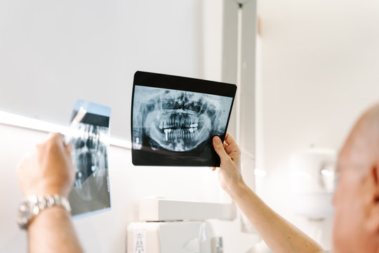 Dentist examines two x-rays of a patient's mouth .
