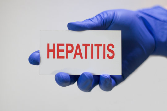Doctor holding a card with text HEPATITIS, medical concept