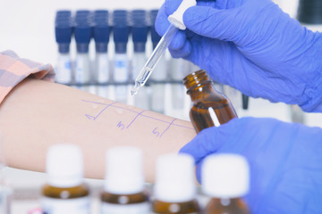 Allergy tests in laboratory