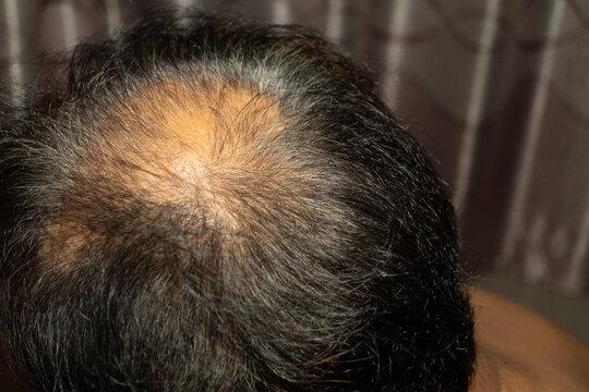Close-up spot baldness. Alopecia Areata.