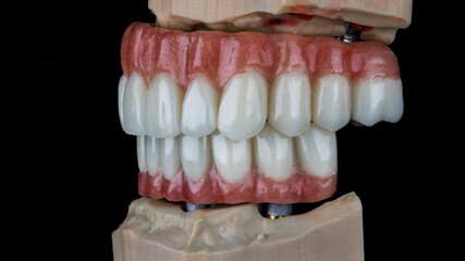 two dental prostheses on models in bite on a black background, side view