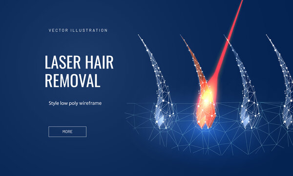 Laser hair removal concept in polygonal futuristic style for landing page. Vector illustration of a hair follicle with a laser to demonstrate the removal process on a blue background