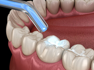 Tooth restoration with filling and polymerization lamp. Medically accurate tooth 3D illustration.