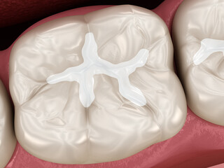 Molar tooth restoration with filling. Medically accurate tooth 3D illustration.