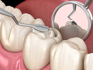 Decayed tooth restoration with composite filling. Medically accurate tooth 3D illustration.