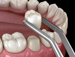 Preparated premolar tooth and ceramic crown placement. Medically accurate 3D illustration