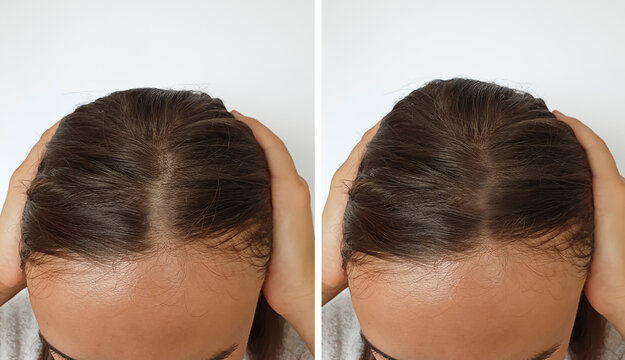 woman baldness hair before and after treatment