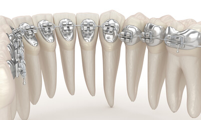 Teeth and Clear braces. 3D illustration concept
