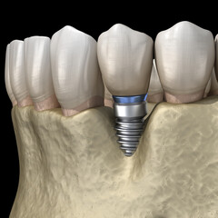 Periimplantitis with visible bone reduction. Medically accurate 3D illustration of dental implants concept