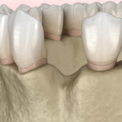Augmentation Surgery - Adding new bone. 3D illustration