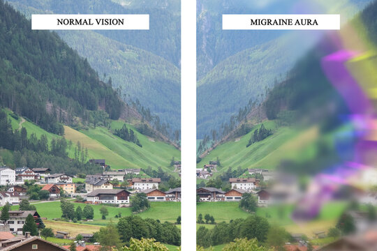 Differences between normal vision and vision with migraine aura. Flashing lights effect, migraine symptom. Medical problem. Visual disturbance and bad headache.