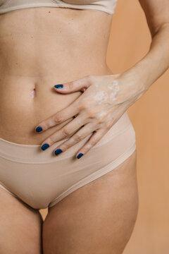 Vitiligo skin
