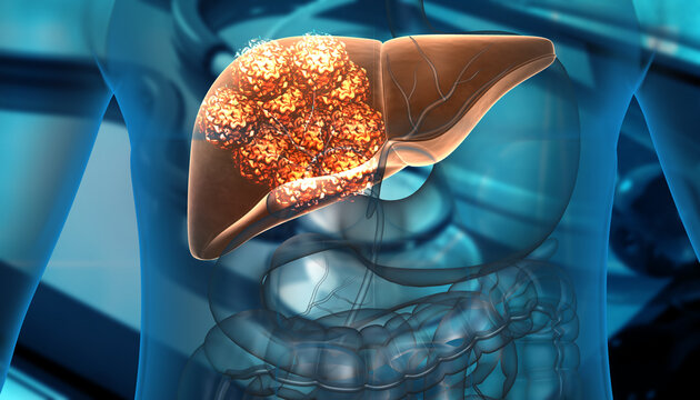 Human liver cancer cell growth. 3d illustration.