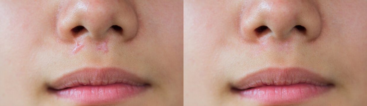 Image before and after laser treatment of keloid scar caused by accident in children, skin imperfections. Hypertrophic Scar on skin, dermatology and cosmetology concept.