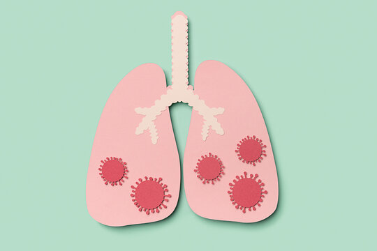 Lungs affected by covid-19