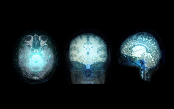 transparent image of the Skull  with  Brain for medical background concept.