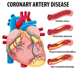 Coronary Artery Disease for health education Infographic