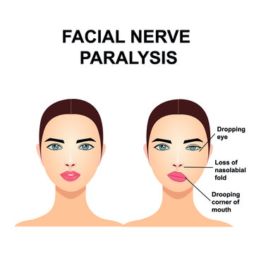 Paralysis of the facial nerve. Bell's palsy.