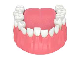 3d render of  jaw with abnormal teeth position