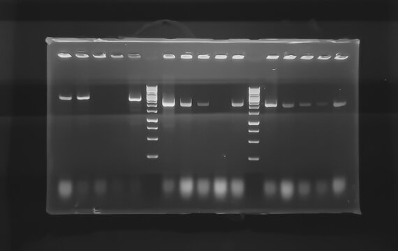 result of agarose gel electrophoresis of PCR products. separation of DNA fragments amplified with the PCR is used for genotyping of transgenic lines in search for heterozygeous lines with tDNA insert