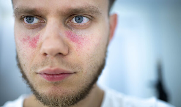 man suffers from systemic lupus erythematosus, age spots of redness on the face, a rash.
