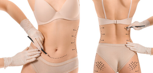 Plastic surgeon applying marks on woman's body against white background