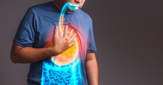 gastroesophageal reflux disease (GERD)., x-ray concept.