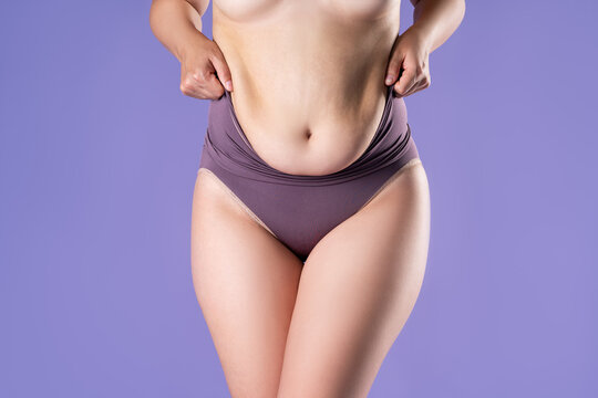 Fat woman in corrective panties, flabby belly after pregnancy, overweight female body on purple background
