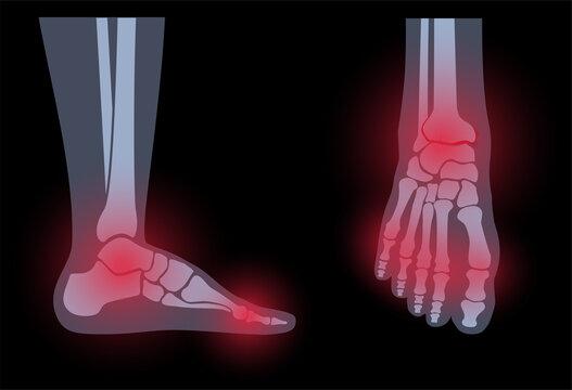 Arthritis foot concept