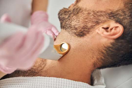 Bearded young man undergoing laser hair removal procedure