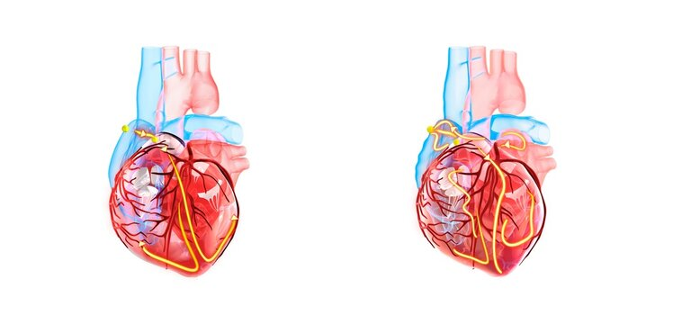 Anatomy of the human heart, the yellow lines demonstrating the electrical (conduction) system of the heart. On the righten side an irregular heartbeat / arrythmia / atrial fibrillation is shown