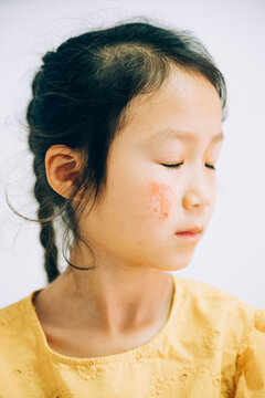 Portrait of school girl with scratches on face