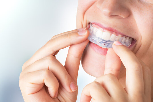 Woman wearing orthodontic silicone trainer. Invisible braces aligner. Mobile orthodontic appliance for dental correction.  Placing a bite plate in mouth to save teeth from grinding caused by bruxism.
