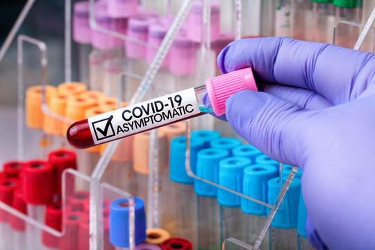 Analysis of the blood tube of a patient infected with Covid-19 but who does not present symptoms of the disease / Blood sample from a patient with a positive result for Coronavirus but asymptomatic