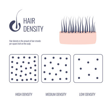 Hair density types classification set. Low, medium, high hair volume on scalp. Anatomical strand structure linear scheme. Outline vector illustration.