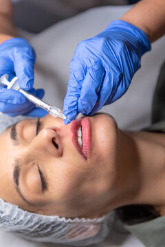 Beautiful, attractive, young woman, lying relaxed in dermatologist ordination, getting a rejuvenating lips treatment with hyaluronic acid filler. Cosmetics and beauty  corrections, skin care concept