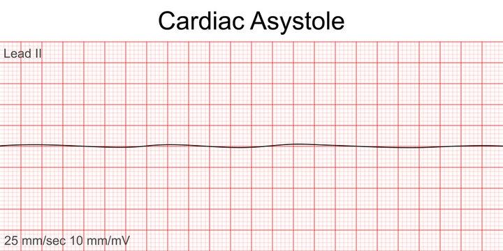 Electrocardiogram show Cardiac asystole pattern. Cardiac fibrillation. Heart beat. CPR. ECG. EKG. Vital sign. Life support. Defib. Emergency. Medical healthcare symbol.