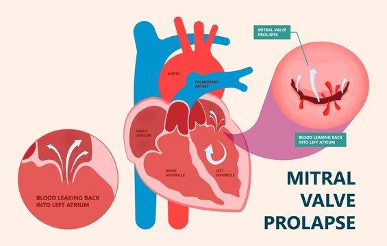 Cath Lab Atrial Septal Defect Tetralogy of Fallot Patent Foramen Ovale Mitral Valve Stenosis Heart Attack Ductus Arteriosus Doppler Coronary Artery Disease Congestive Congenital Valvular VSD exam leak
